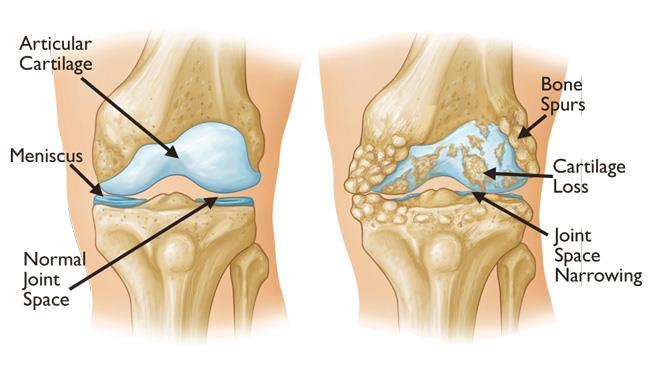 Arthritis Diagnosis and Treatment